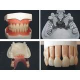 Protesis Dental Quito Popular Flexible Reparaciones  80$